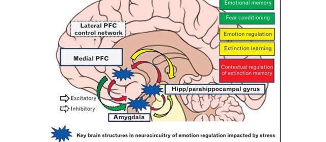 L'ansia può modificare il nostro cervello